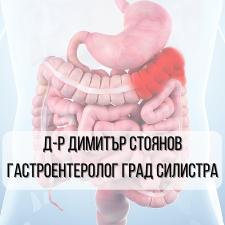 Д-р Димитър Стоянов – Гастроентеролог град Силистра