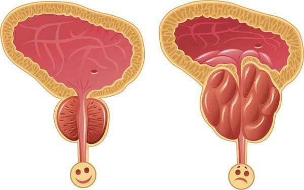 Какво трябва да знаем за простатата